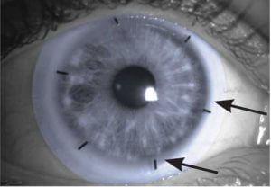 Innovative lens scribe marks